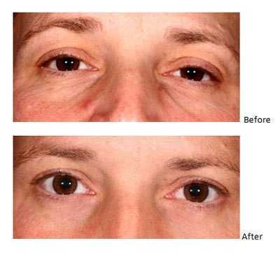 Before+and+after+wrinkle+treatment