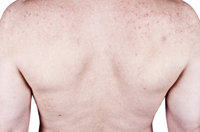 Acne+scarring