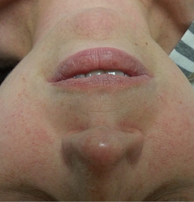 Advanced+dry+rosacea+subtype+I+that+was+not+treated+and+controlled.