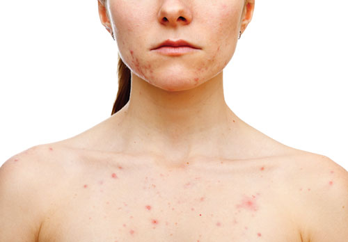 The+Essential+Truth+About+Acne