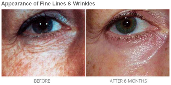 A before and after picture of Environ
