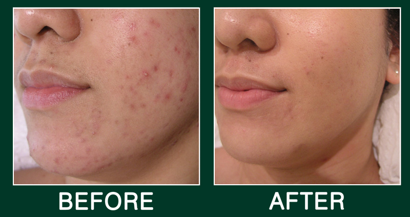 DMK - Acne Before and After