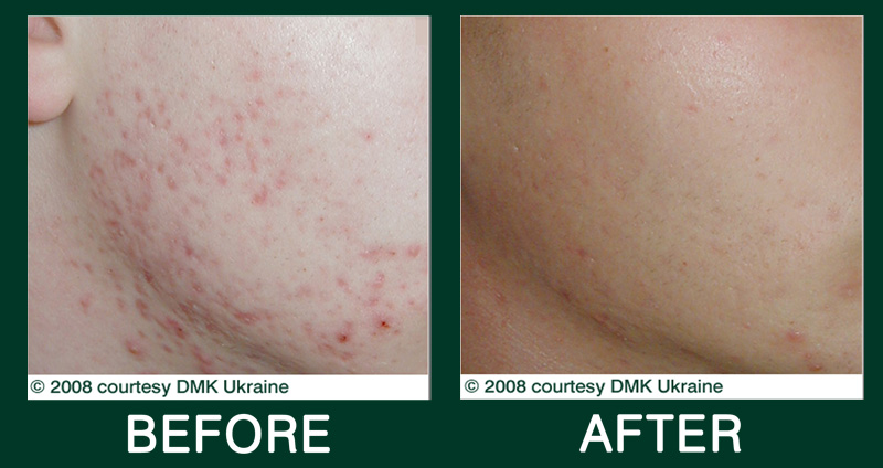 DMK Before and After Acne Treatment