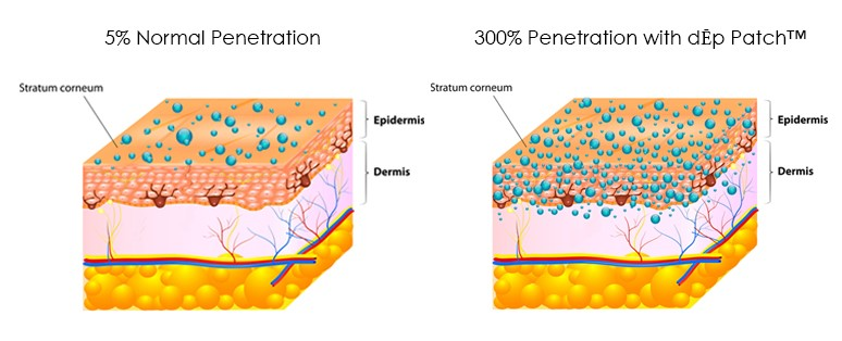 A picture of penetration