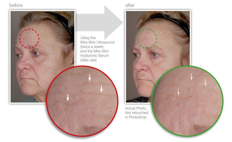 The affect on wrinkles