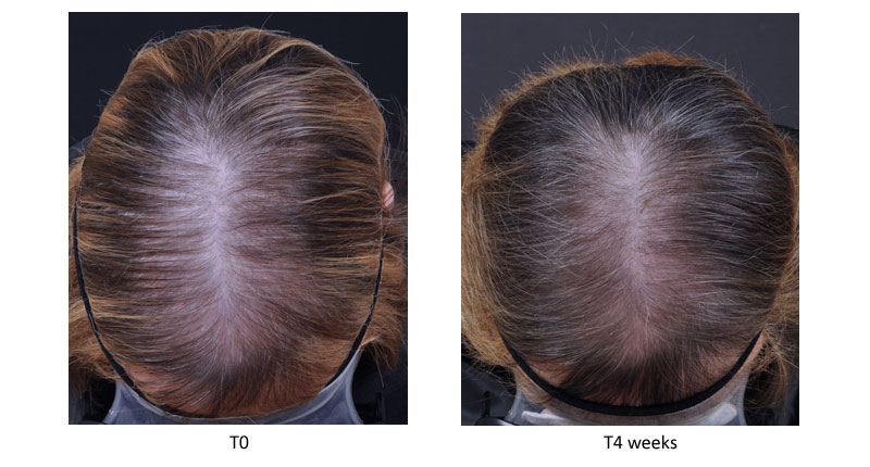 Hair Loss Sederma